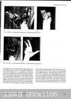 Hand-Injures-fromFireworks-2.jpg - 338kB