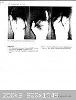 Hand-Injures-fromFireworks3.jpg - 200kB